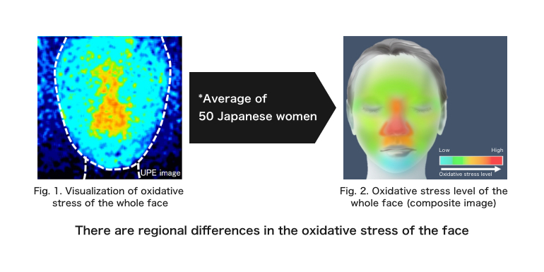 There are regional differences in the oxidative stress of the face