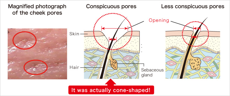 Magnified photograph of the cheek pores Conspicuous pores Less conspicuous pores