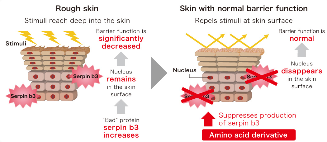 Rough skin Skin with normal barrier function