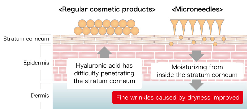 Regular cosmetic products Microneedles