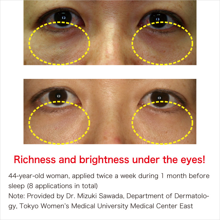 Development of hyaluronic acid patch for application around the eyes
