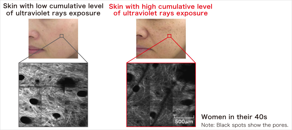 Skin with low cumulative level of ultraviolet rays exposure Skin with high cumulative level of ultraviolet rays exposure