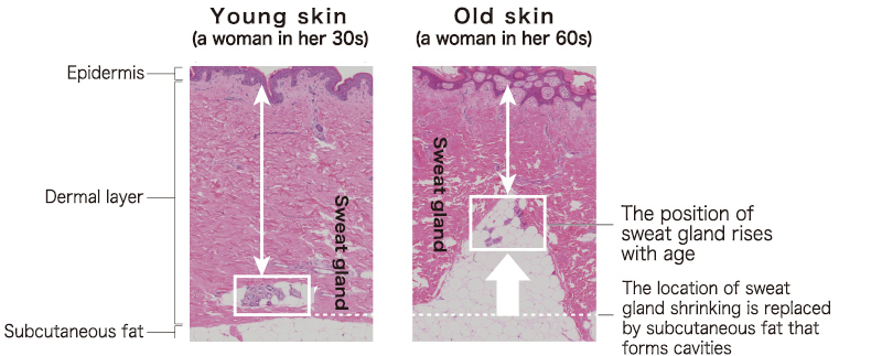 Young skin (a woman in her 30s),Old skin (a woman in her 60s)